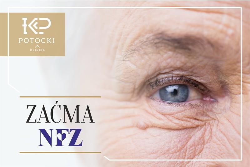 operacje-zacmy-w-ramach-nfz-w-klinice-potocki-113416
