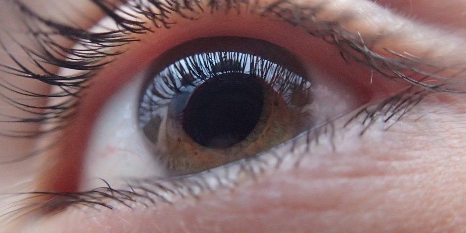 Blepharoplastyka (korekta powiek) na czym polega? Jak przebiega? Jaka jest cena zabiegu